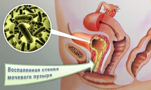 Воспаление мочевого пузыря считается одним из самых распространенных заболеваний, и от него никто не застрахован. Оно может появиться у любого человека