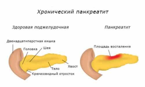 Локализация болей при хроническом панкреатите та же, что и при острой форме, боли могут отдавать в спину