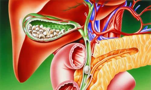Желчнокаменная болезнь одна из причин развития панкреатита
