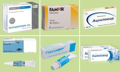 Препараты от герпеса делятся на таблетки для приема внутрь и мази местного применения