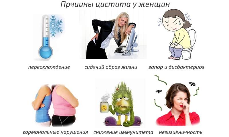 Лечение цистита гомеопатией: препараты