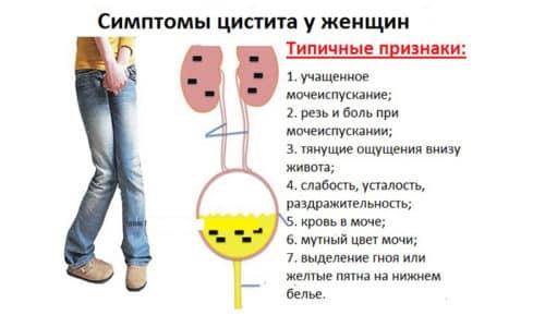 Такое неприятное заболевание, как цистит, имеет ряд характерных симптомов