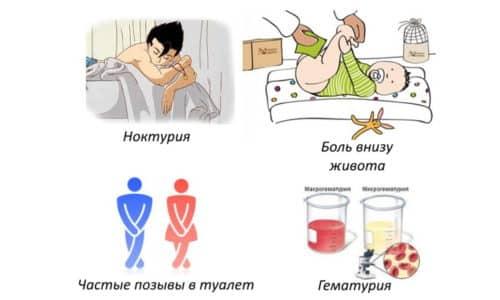 Симптомы у детишек различаются в зависимости от их возраста