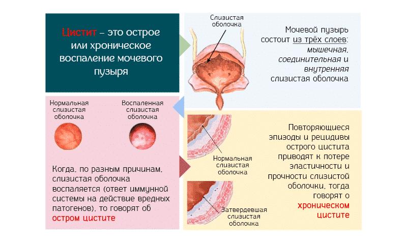 Цистит у женщин: лечение, симптомы, особенности, профилактика, осложнения, виды (фото)