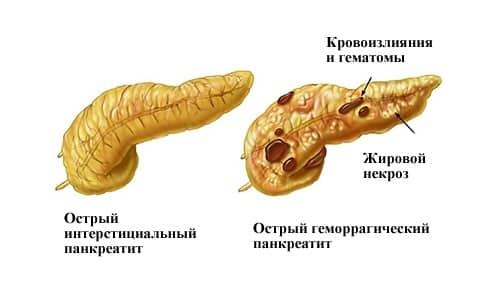 Диета при остром панкреатите поджелудочной железы примерное меню
