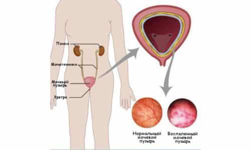 Бывают случаи, когда избавить женщину от цистита возможно только с помощью хирургического вмешательства. Воспаление часто поражает мочевой пузырь из-за очень близкого расположения матки и уретры