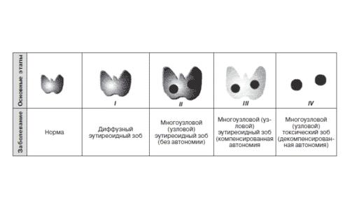 Йододефицит провоцирует развитие серьезных заболеваний, таких как зоб (простой, диффузный, нетоксический, эутиреоидный)