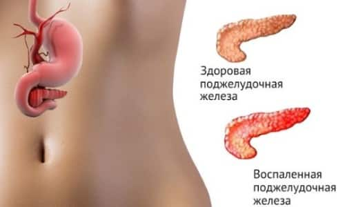 Панкреатит - это воспалительный процесс поджелудочной железы
