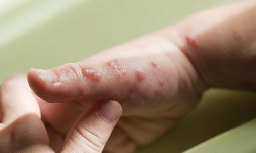 Герпес на руках обычно связан с переохлаждением или травмой