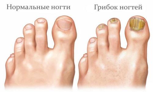 Не заметить деформацию ногтя, пораженного грибком невозможно. Однако, к большому сожалению, мало кто из пациентов обращаются к врачу на первых этапах