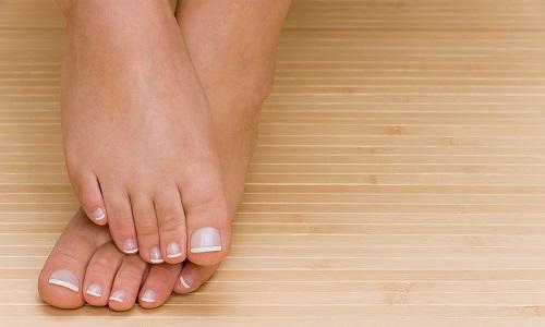 Чаще всего онихокриптоз развивается на большом пальце ноги, реже на пальцах рук