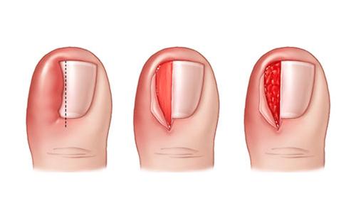 Удаление вросшего ногтя хирургическим методом осуществляется в том случае, если патология запущена и консервативное лечение является не эффективным