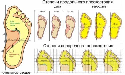 Диагностика стопы посредством отпечатка является наиболее простой, информативной