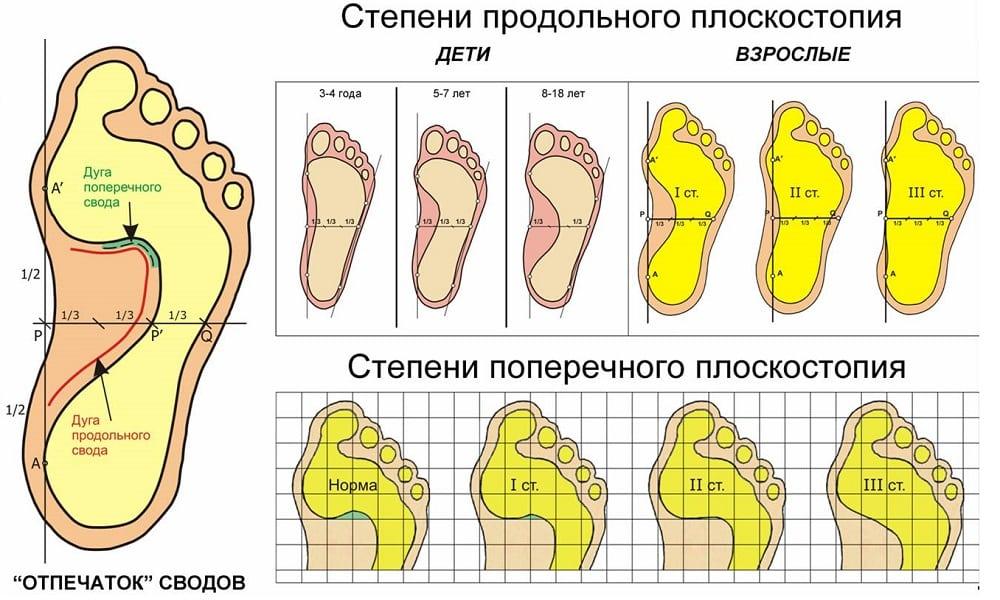 КРЕВЕТКЛЯРЕ - рецепт с пошаговыми фото