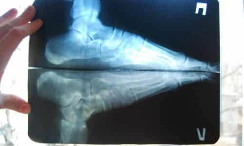 Рентгенография позволяет изучить детально изменение положение продольного и поперечного сводов, высоты пятки посредством рентгена