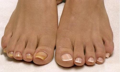 Большинство грибковых инфекций на первых стадиях развития способствуют изменению цвета ногтя