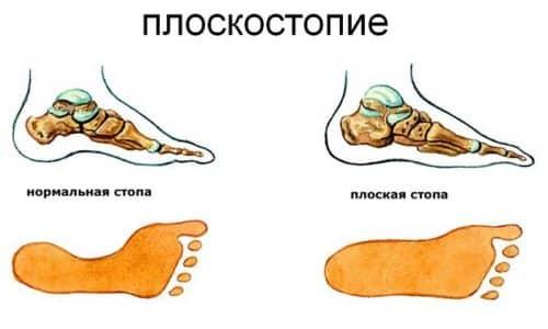 Плоскостопие – это тяжелое заболевание, характеризующееся изменением сводов нижних конечностей