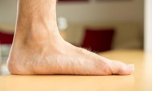 Комбинированное плоскостопие диагностируется при наличии ослабленных связок и ведении неправильного образа жизни у людей в возрасте до 40 лет