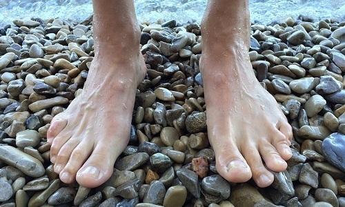Полезным занятием при плоскостопии будет ходьба по гальке