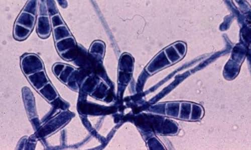 Основными возбудителями грибка ногтей являются грибы дерматофиты