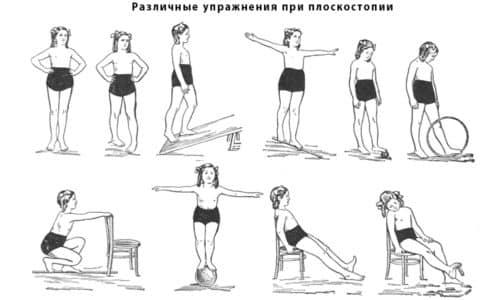 В качестве профилактических мер от плоскостопия можно выполнять лечебные комплексы упражнений