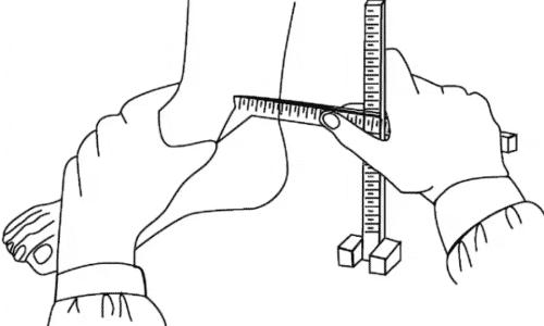 Есть ли плоскостопие по Фринлянду, можно определить посредством элементарных математических исчислений. Для этого нужно измерить длину и высоту стопы