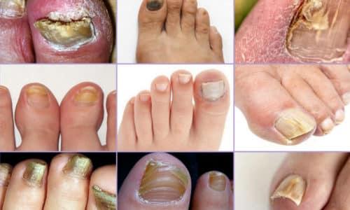 Грибковое поражение ногтей или онихомикоз – весьма распространенное заболевание инфекционной природы