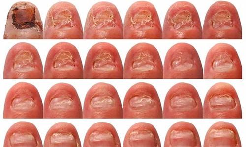 Многие не обращают внимание на первые признаки грибковой инфекции, чем позволяют грибку прогрессировать, поражать более глубокие ткани ногтей