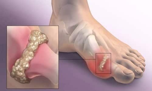 Поперечное плоскостопие характеризуется особенными изменениями стопы, такими как нарост «шишки» на первом пальце