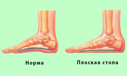 Плоскостопие – это одно из самых распространённых и тяжело излечимых заболеваний человечества, в результате развития которого стопа приобретает плоскую форму и теряет функции амортизации