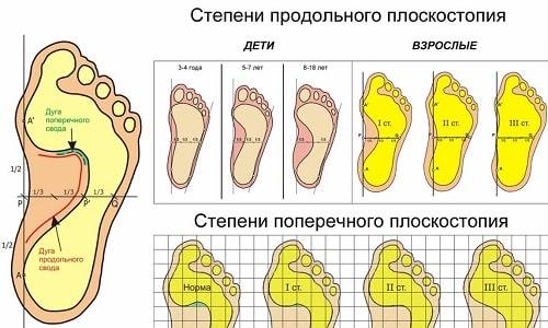 Зачастую плоскостопие определяется ортопедом во время ежегодного медицинского осмотра