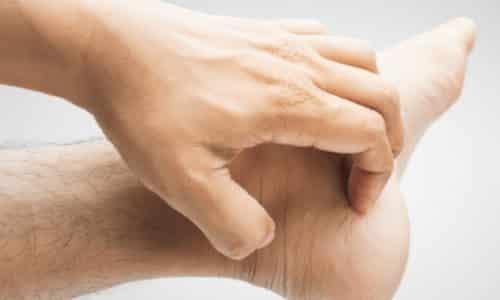 Если после 1 недели нанесения мази на кожу ног, никаких улучшений не наблюдается, нужно сообщить об этом врачу