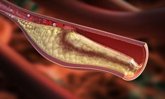 При острой форме происходит образование тромбов