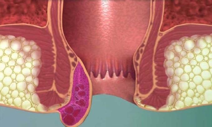 При герпесе прямой кишки развиваются трещины, дефекация становится болезненной, возникает едва переносимый зуд