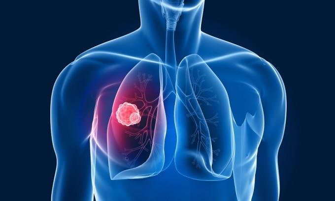 Туберкулез является причиной возникновения варикозного расширения вен пищевода