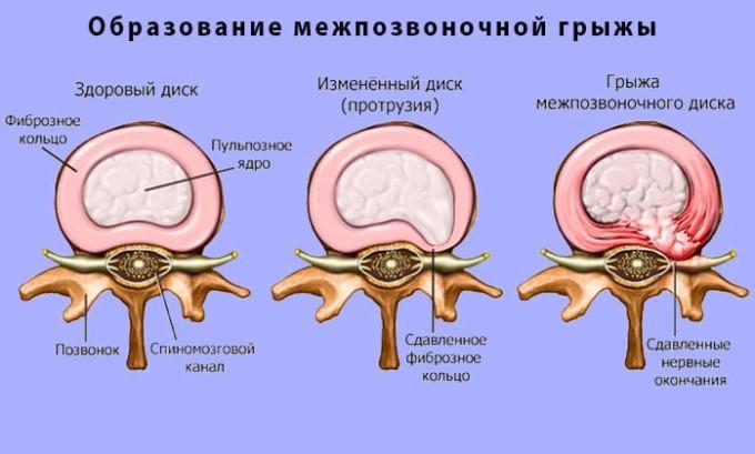 Образование межпозвоночных грыж иногда связано с наличием у человека плоскостопия