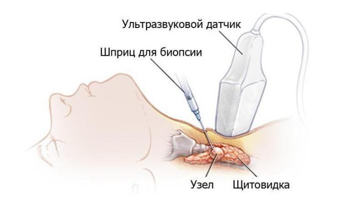 Биопсия щитовидной железы позволяет четко установить, что узел имеет воспалительное или опухолевое происхождение