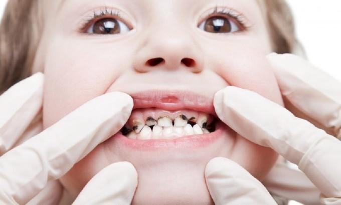 На второй стадии губы и слизистая рта покрываются красными высыпаниями, которые вызывают сильный зуд