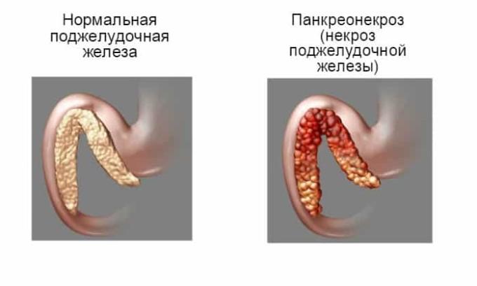 При панкреонекрозе поджелудочная железа требует оперативного лечения