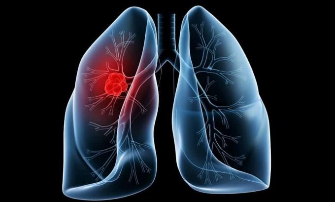 При воспалении легких высок риск развития опоясывающего лишая