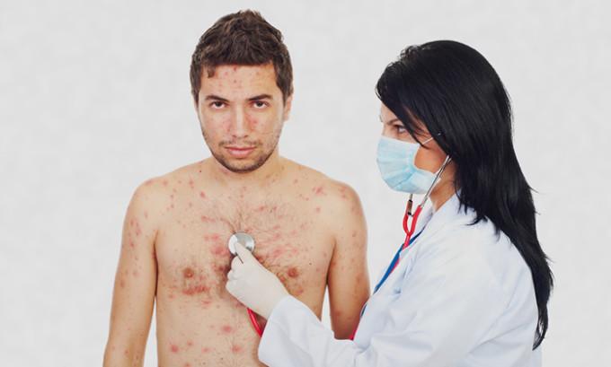 Человек может не только заразить окружающих, но и перенести инфекцию на другие участки своего тела, путем прикосновения к высыпаниям