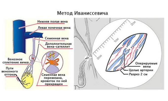 Классический способ операционного лечения варикоцеле проходит под общим наркозом