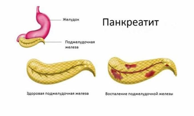 Ферменты поджелудочной железы помогают переваривать пищу. Если этот орган работает исправно, то нет никаких проблем с усвоением белков, жиров, углеводов