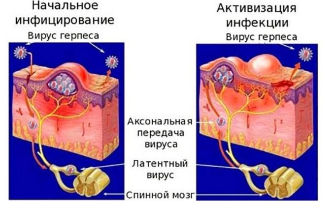 Вторая группа последствий герпеса- проникновение вируса в организм человека, там он при отсутствии лечения будет стремительно развиваться, поражая остальные внутренние ткани и органы