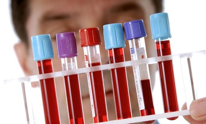 При подозрении на наличие тиреотоксикоза диагностика предполагает необходимость определения уровня в крови тиреоидных гормонов