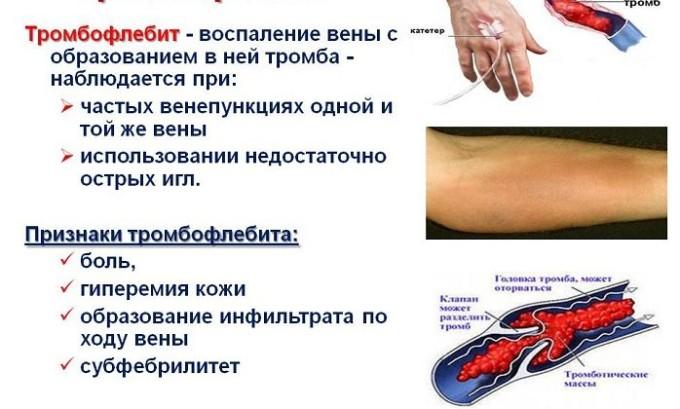 Наличие острого тромбофлебита является показанием к проведению операции
