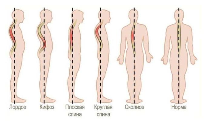 К сожалению, наличие заболевания отражается на работе всего организма, а значит и служит причиной развития ряда иных заболеваний (артроза, сколиоза)