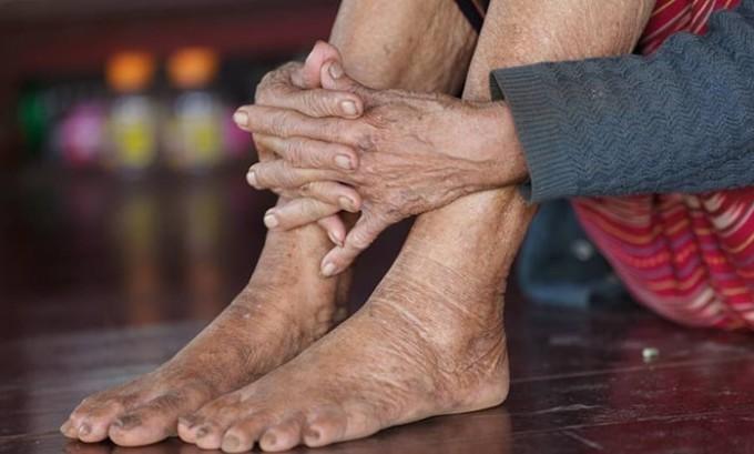 Согласно медицинским показателям, около 90% людей пожилого возраста страдают грибком ногтей. Причины такого явления скрываться в снижении рН кожи, а также медленном росте ногтей