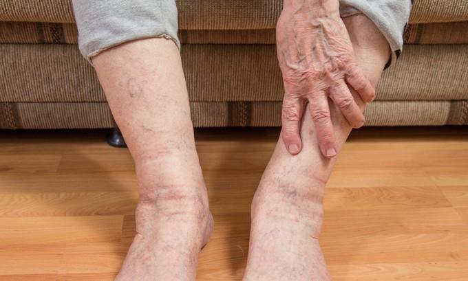 Отеки ног зачастую сигнализируют о варикозе