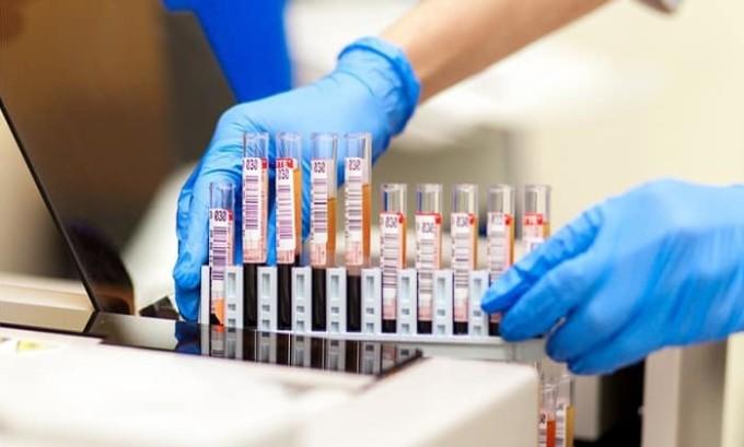 В лабораториях для определения уровня гормона в крови используются специальные аппараты - анализаторы. В настоящее время применяются анализаторы второго и третьего поколений